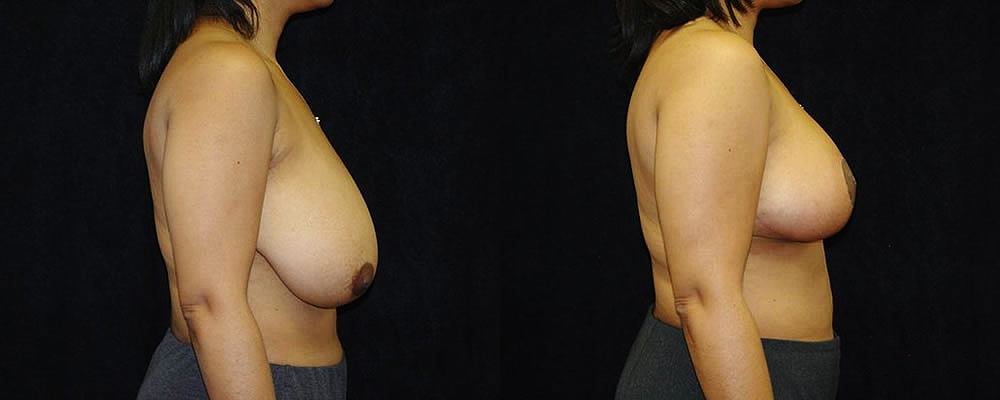 Breast Reduction Before & After Patient #1073