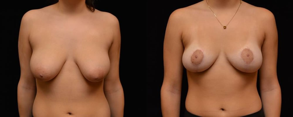 Breast Reduction Before & After Patient #1069