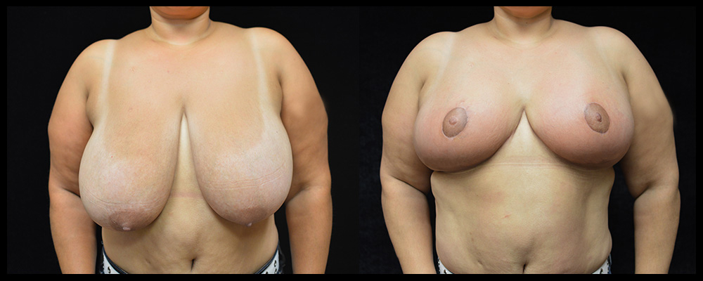 Breast Reduction Before & After Patient #1064