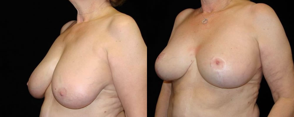 Breast Reduction Before & After Patient #1101