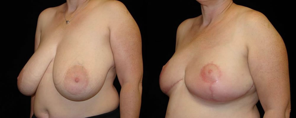 Breast Reduction Before & After Patient #1097