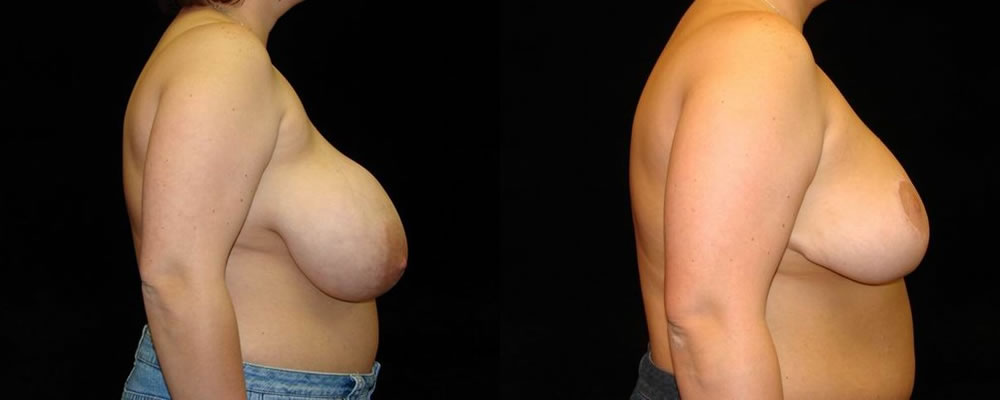 Breast Reduction Before & After Patient #1093