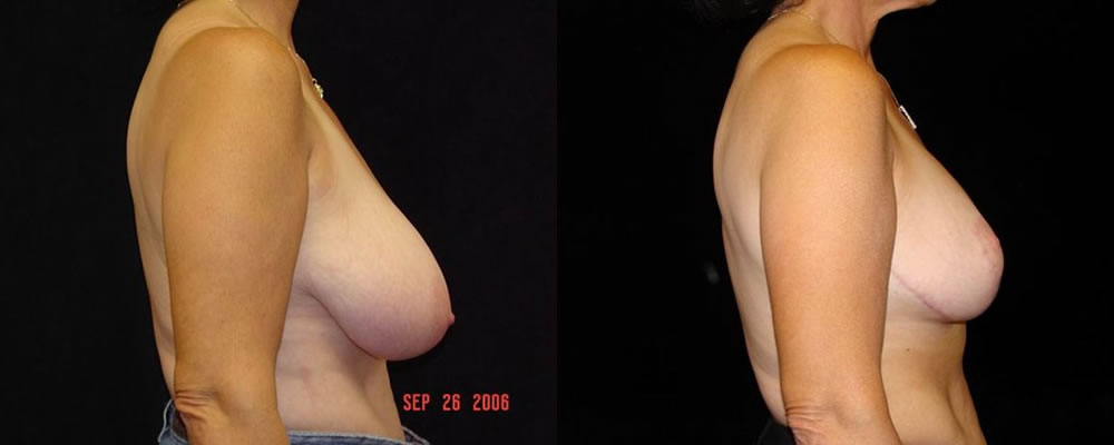 Breast Reduction Before & After Patient #1089