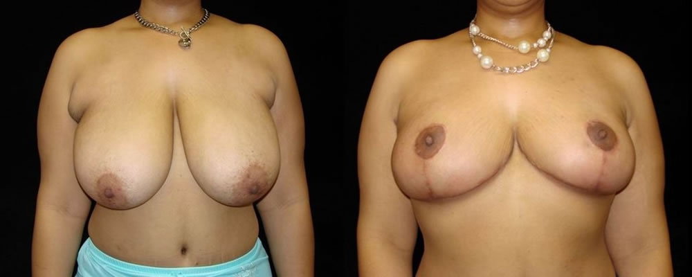 Breast Reduction Before & After Patient #1085