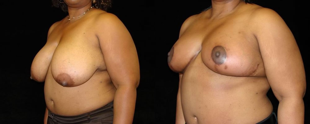 Breast Reduction Before & After Patient #1081