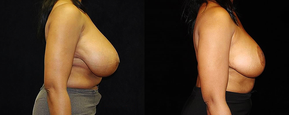 Breast Reduction Before & After Patient #1077