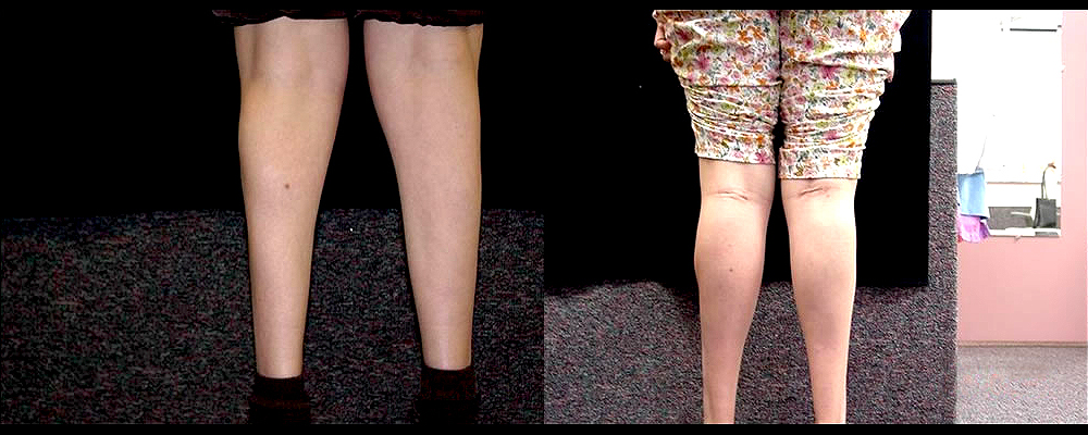 Calf Implants Before & After Patient #276