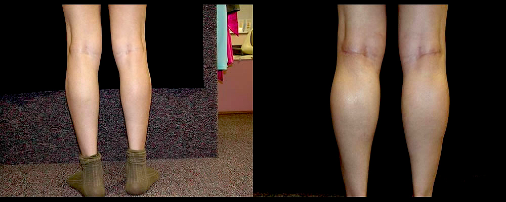Calf Implants Before & After Patient #269