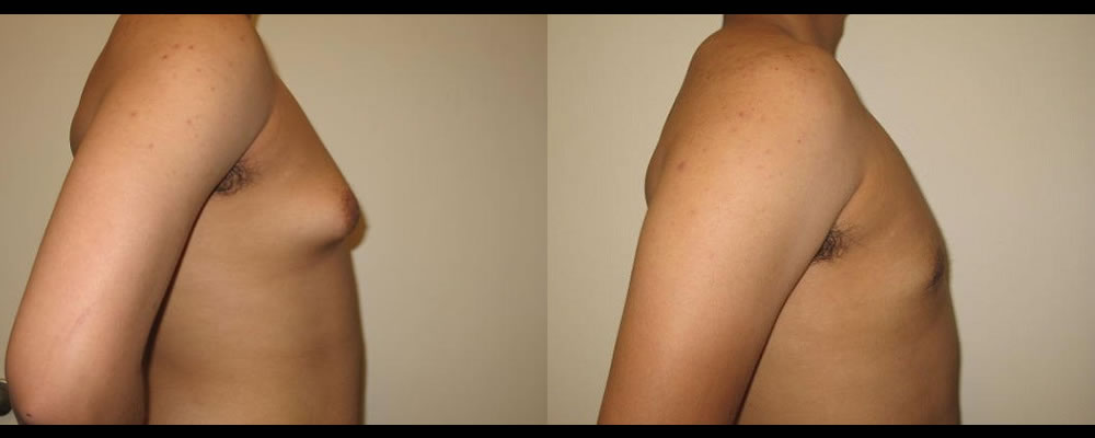 Gynecomastia Before & After Patient #1113