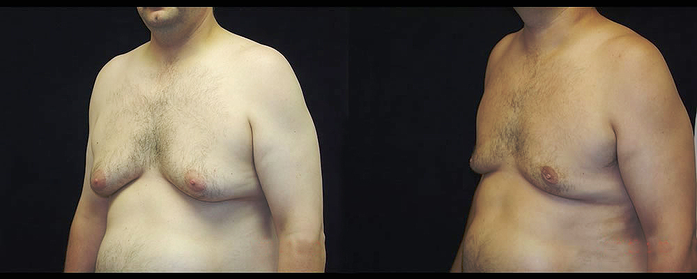 Gynecomastia Before & After Patient #1109