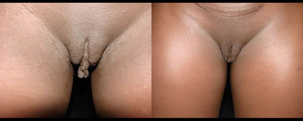 Labiaplasty Before & After Patient #286