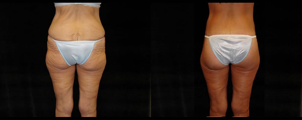 Lower Body Lift Before & After Patient #429