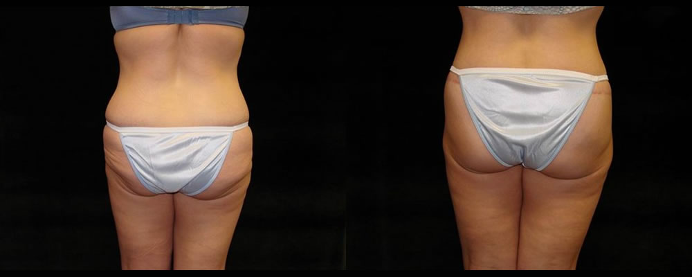 Lower Body Lift Before & After Patient #425