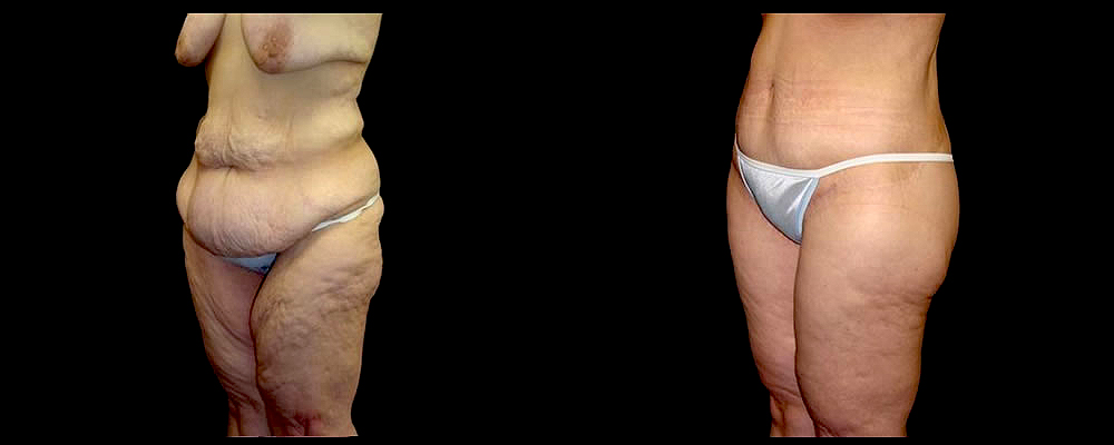 Lower Body Lift Before & After Patient #421