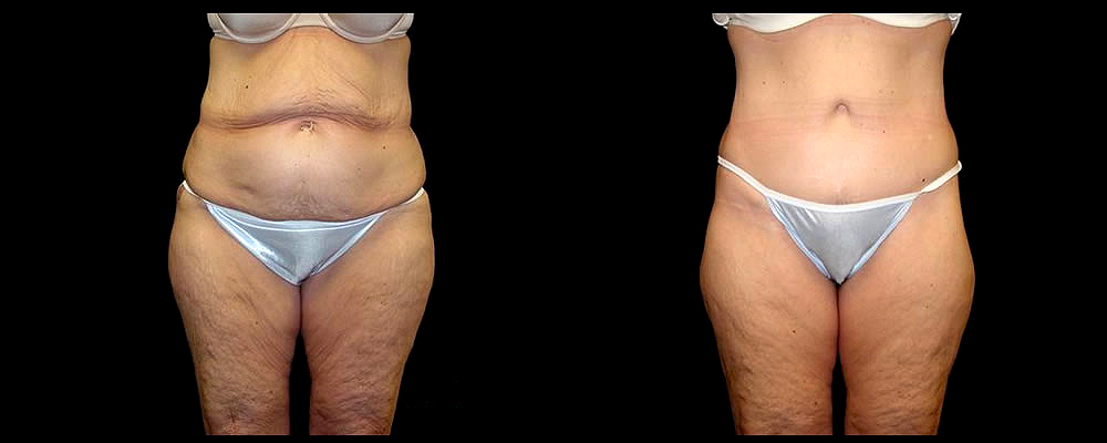 Lower Body Lift Before & After Patient #417