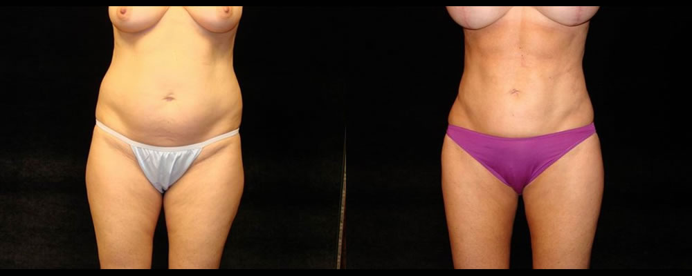 Liposuction Before & After Patient #406