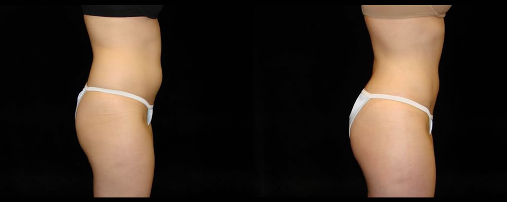 Liposuction Before & After Patient #371