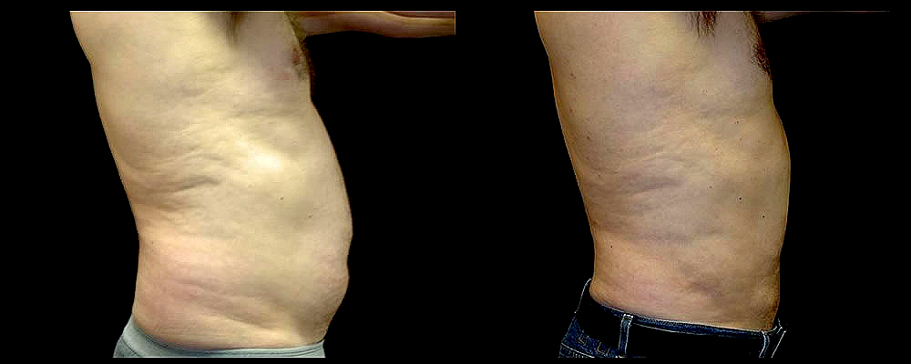 Liposuction Before & After Patient #367