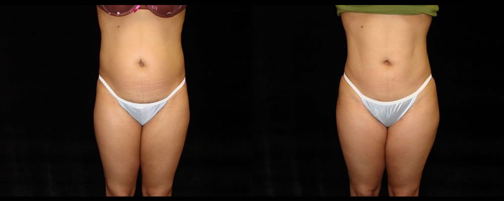 Liposuction Before & After Patient #363