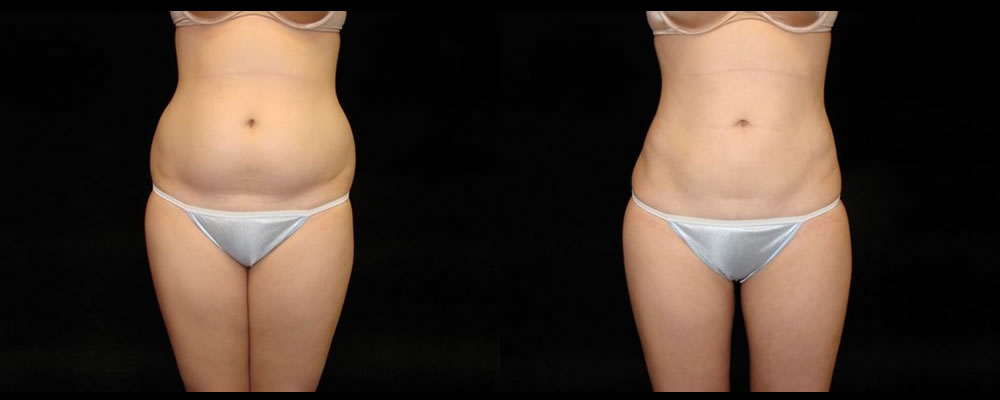 Liposuction Before & After Patient #355