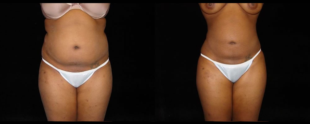 Liposuction Before & After Patient #351