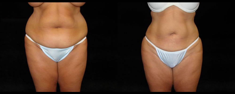 Liposuction Before & After Patient #343