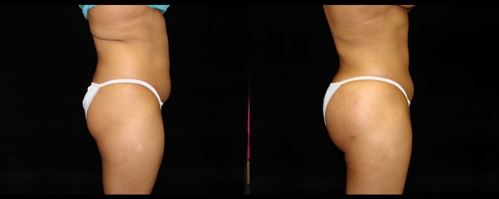 Liposuction Before & After Patient #339