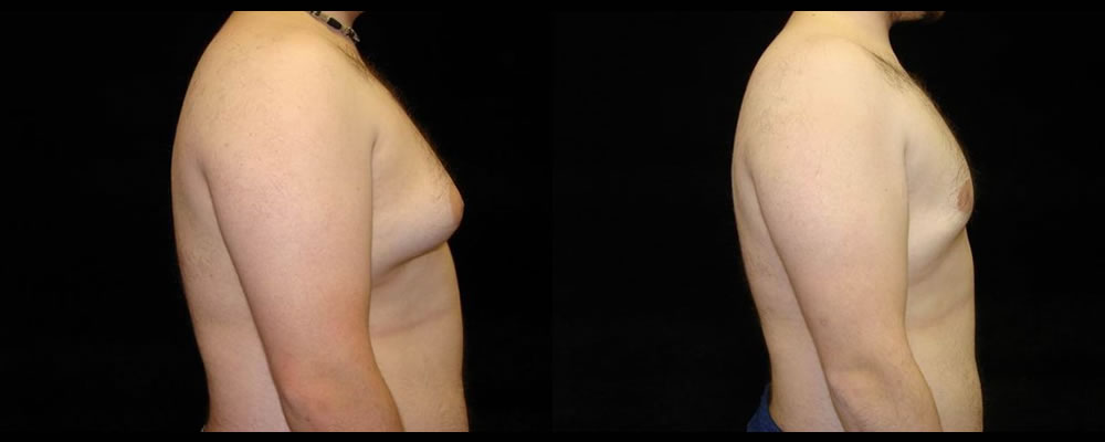 Liposuction Before & After Patient #335