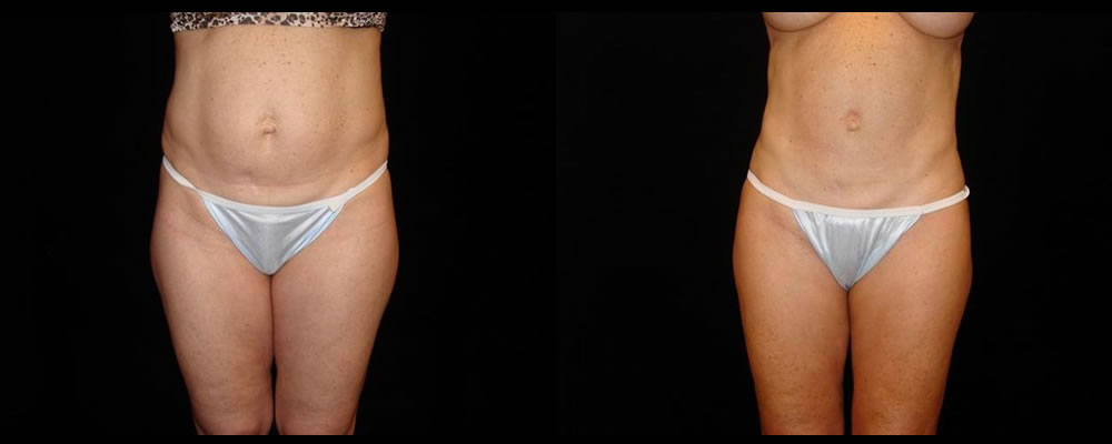 Liposuction Before & After Patient #402