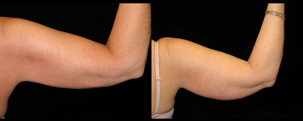 Liposuction Before & After Patient #327