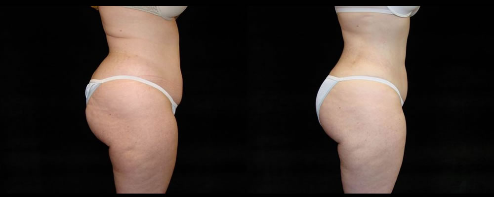 Liposuction Before & After Patient #321