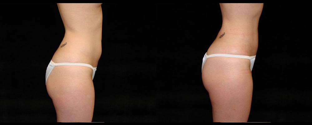 Liposuction Before & After Patient #319