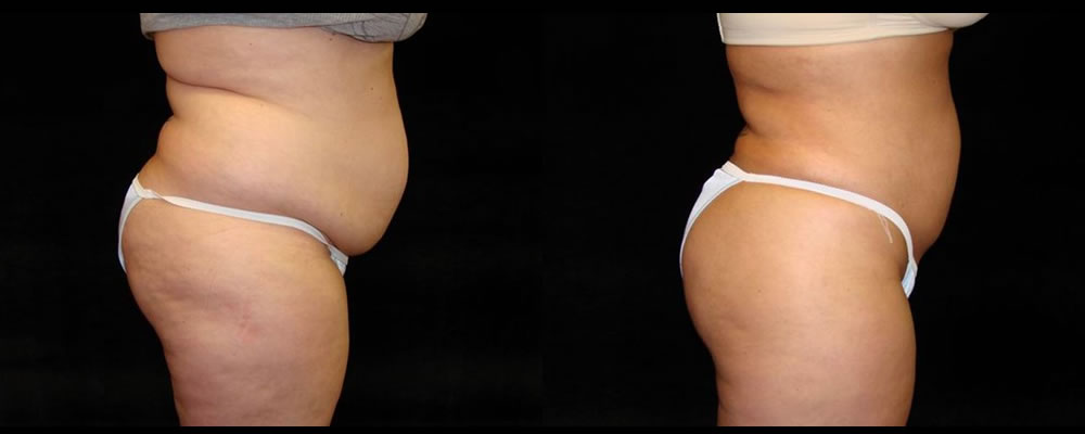 Liposuction Before & After Patient #317