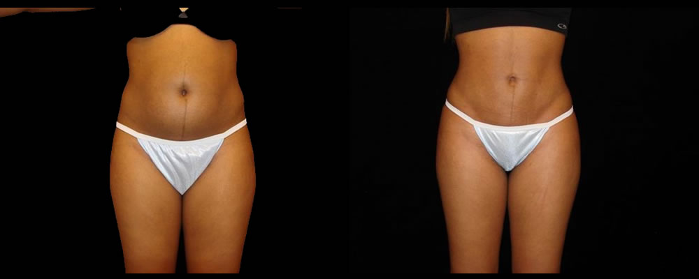 Liposuction Before & After Patient #398