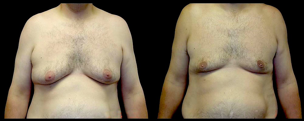 Liposuction Before & After Patient #394
