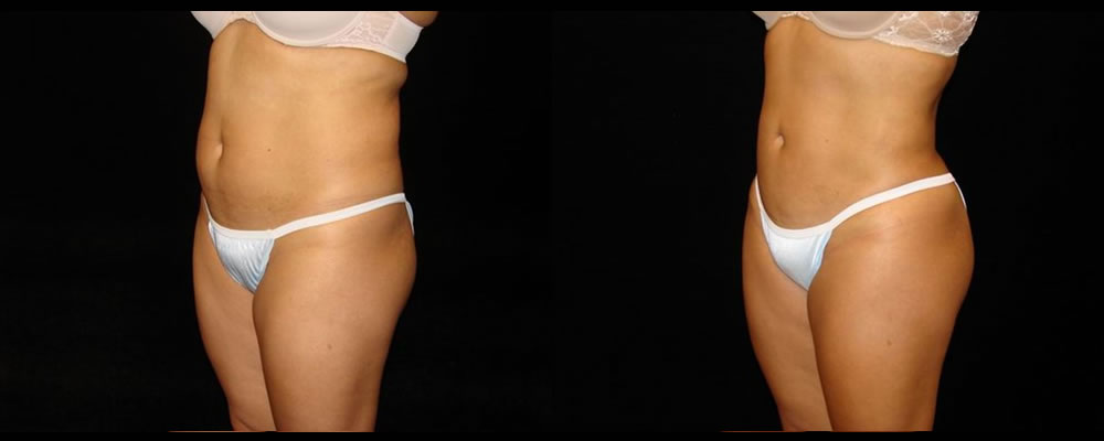 Liposuction Before & After Patient #390