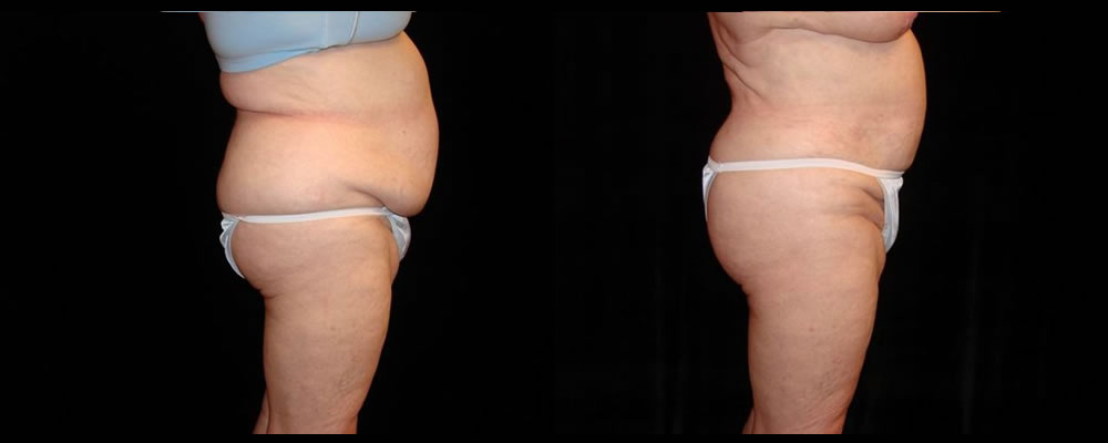 Liposuction Before & After Patient #386