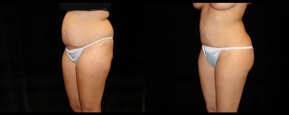 Liposuction Before & After Patient #382