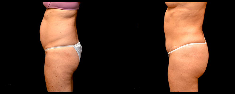Liposuction Before & After Patient #311