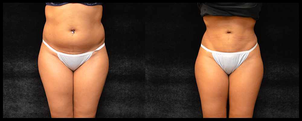 Liposuction Before & After Patient #307