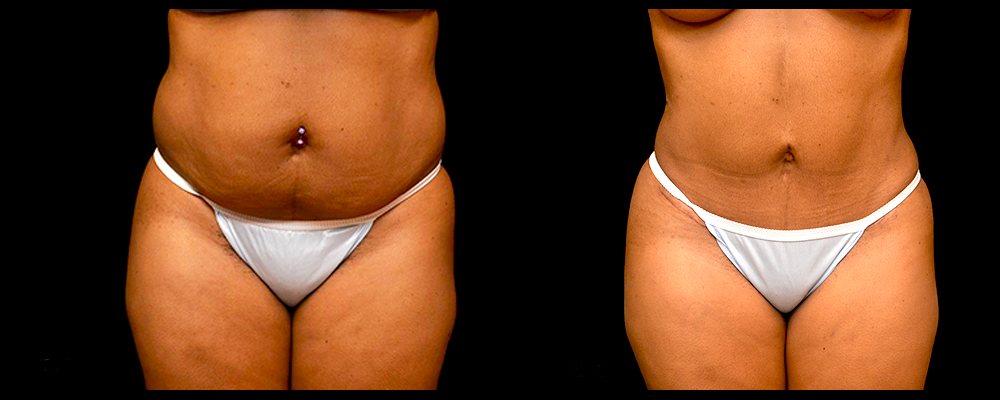 Liposuction Before & After Patient #303