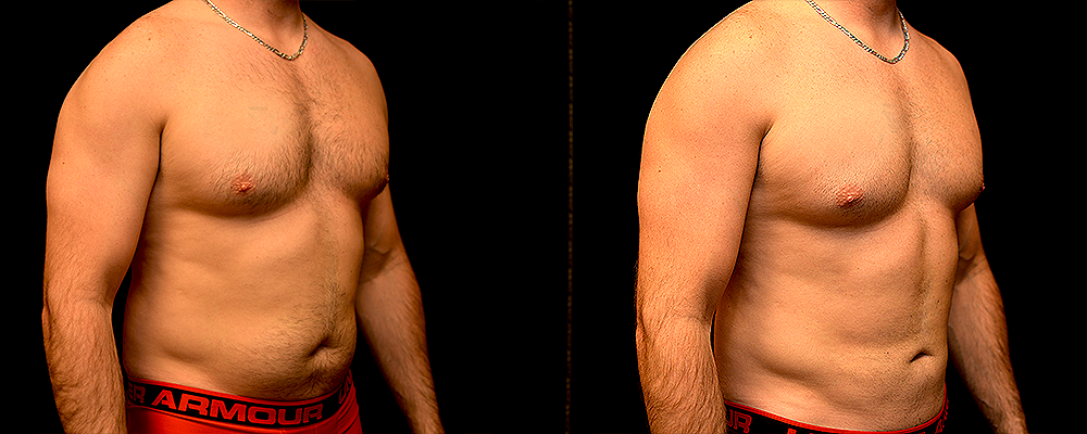 Liposuction Before & After Patient #299