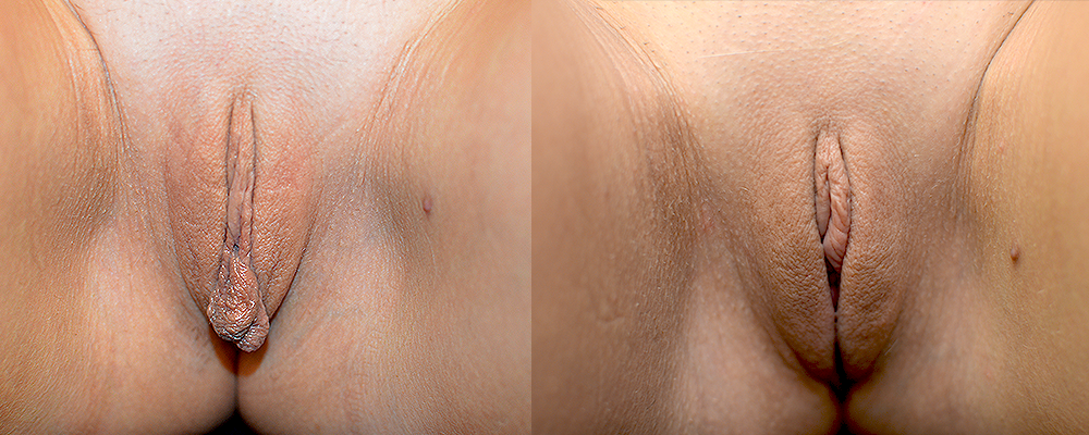 Labiaplasty Before & After Patient #282