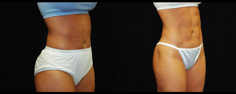 Six Pack Abs Before & After Patient #1149