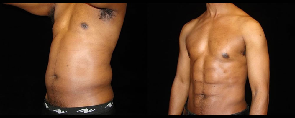 Six Pack Abs Before & After Patient #1145