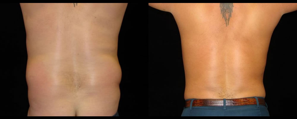 Six Pack Abs Before & After Patient #1141