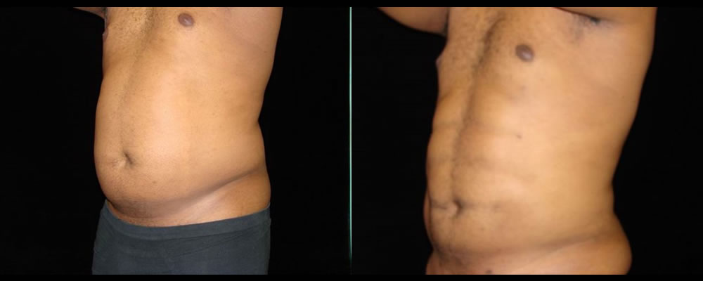 Six Pack Abs Before & After Patient #1137