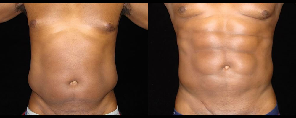 Six Pack Abs Before & After Patient #1133