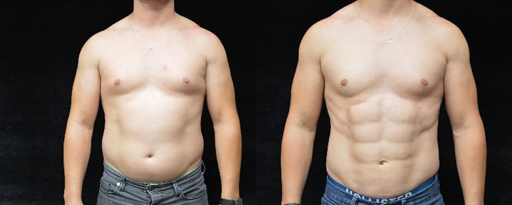 Six Pack Abs Before & After Patient #1131