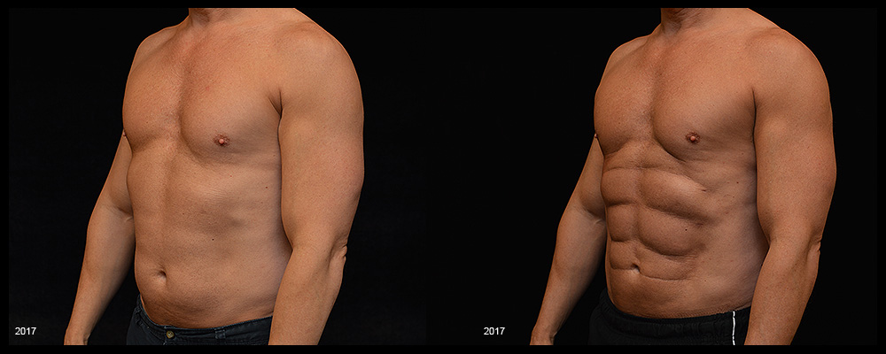 Six Pack Abs Before & After Patient #1128